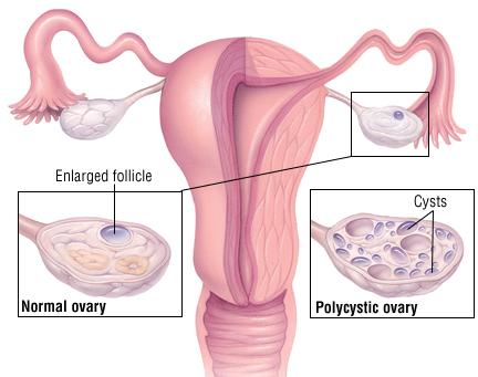 Polycystic-Ovarian-Syndrome